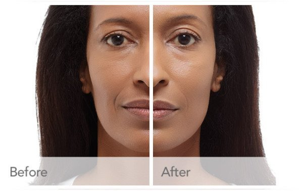 Radiesse | Non-Surgical Cosmetic Treatment | Encino