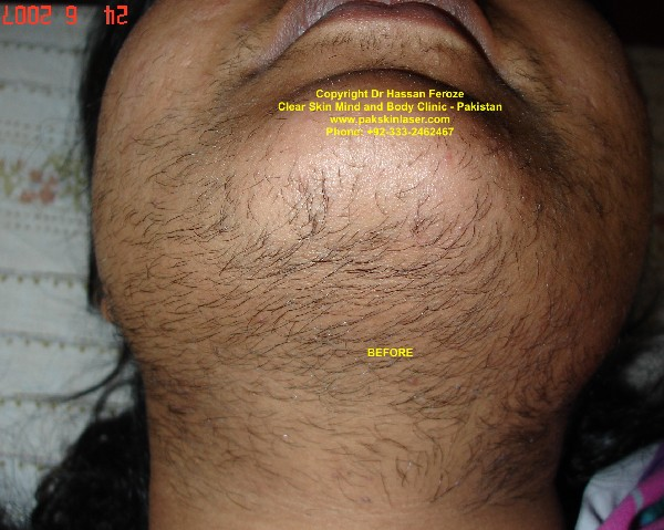 Clear Skin Laser Clinic Painless Laser Hair Reduction