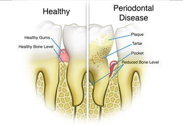 when periodontal disease requires osseous surgery - Gentle Dental Associates, Park Slope & Prospect Heights, Brooklyn