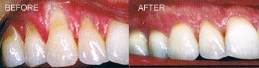 gum graft treatment - before and after - Gentle Dental Associates, Park Slope & Prospect Heights, Brooklyn