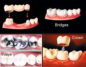 dental bridges, inlays, and crowns
