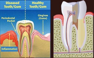 diseased tooth and gum vs healthy tooth and gum