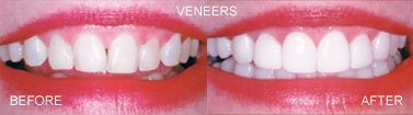 laminates and veneers, before and after